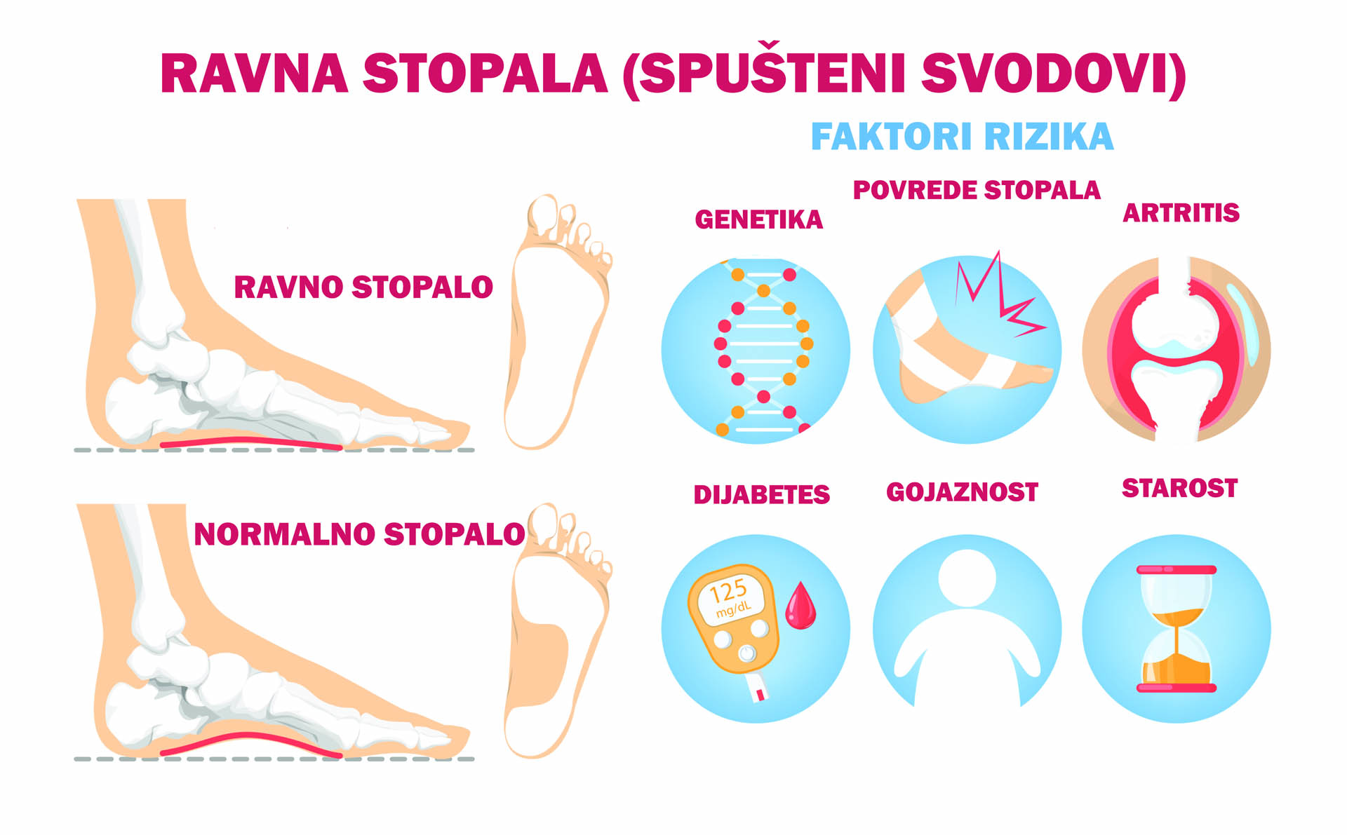 ravna-stopala-grafika